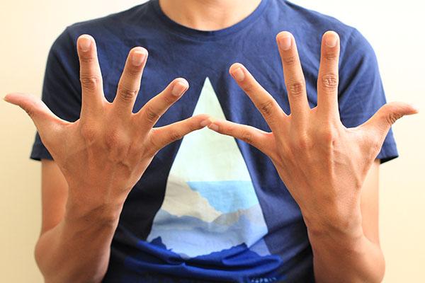 預防彈吉他手痛 - 雙手開合練習